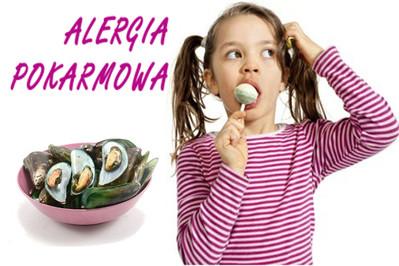 Objawy alergii pokarmowej u dzieci i dorosłych. WARTO JE POZNAĆ!